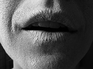 Sausos lūpos
