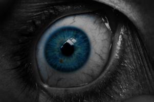 Akių deginimas ir paraudimas